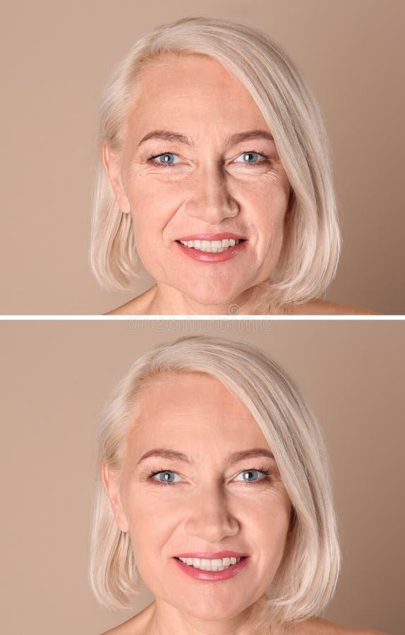 Красивая зрелая женщина перед и после процедурой по biorevitalization на беже стоковое фото