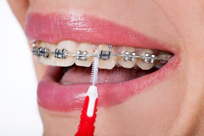 Красивые зубы с совершенной гигиеной полости рта, концом вверх стоковая фотография rf