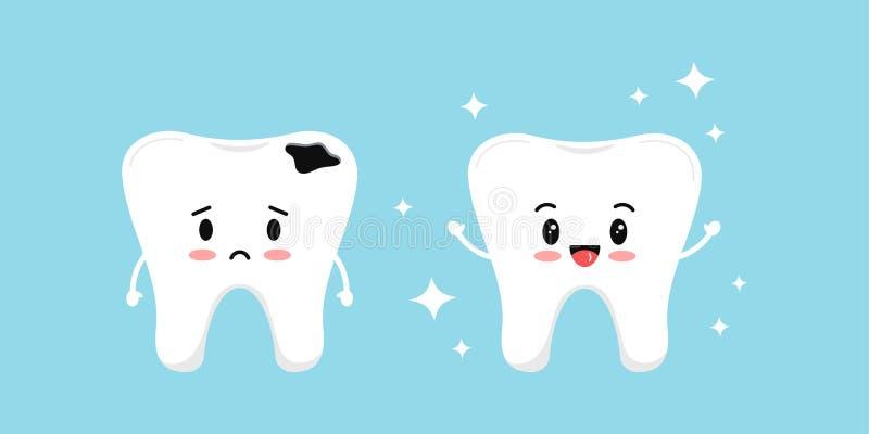 Стоматологическое восстановление зуба