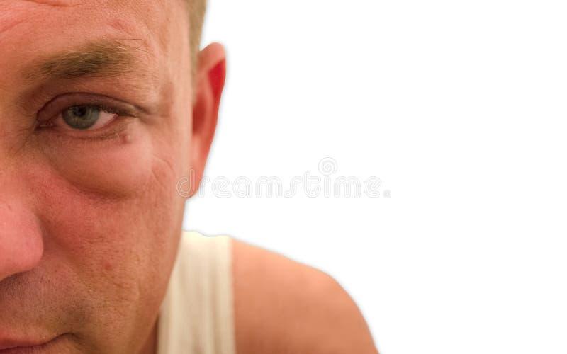 Красный опухнутый водообильный глаз с белой предпосылкой стоковое изображение rf