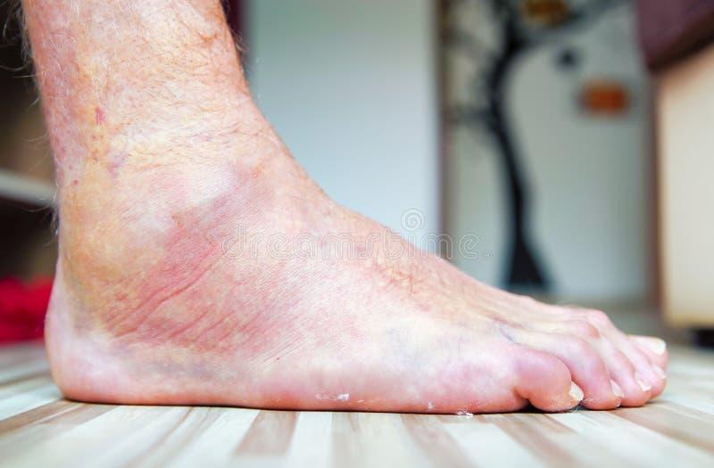Красочная сломанная нога стоковое фото rf