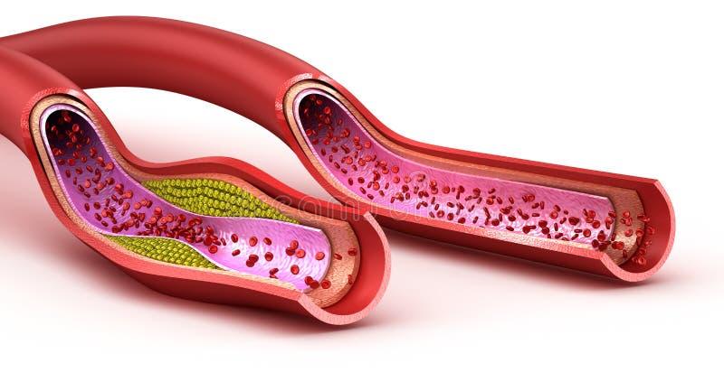 Кровеносный сосуд: нормальный и поврежденный холестеролом сосуд иллюстрация штока
