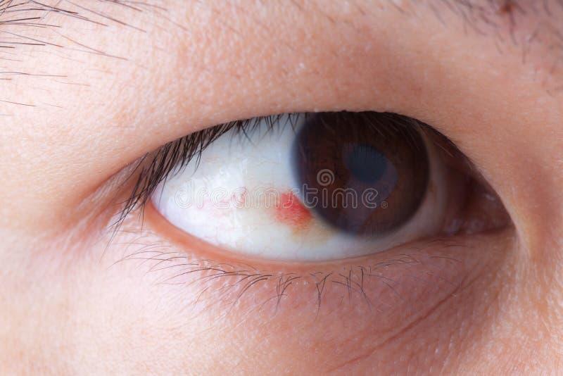Кровотечение Ubconjunctival в глазе стоковая фотография
