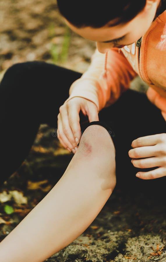 Кровоточить поцарапанное колено стоковая фотография rf