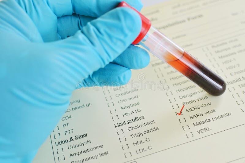 Кровь для испытания вируса MERS стоковые фото