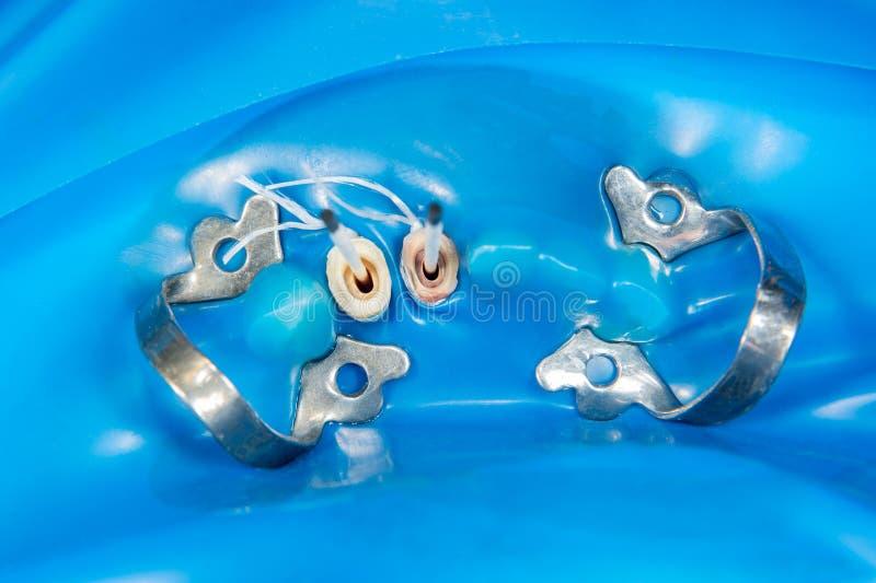 Крона зуба на модели гипсолита человеческой челюсти Конец-вверх макроса процесса производства анатомическая крона зуба _ стоковые изображения rf