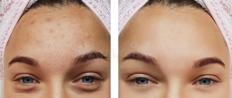 Крупный план обработки глаза девушки, удаление перед и после процедурами, угорь терапией стоковое фото