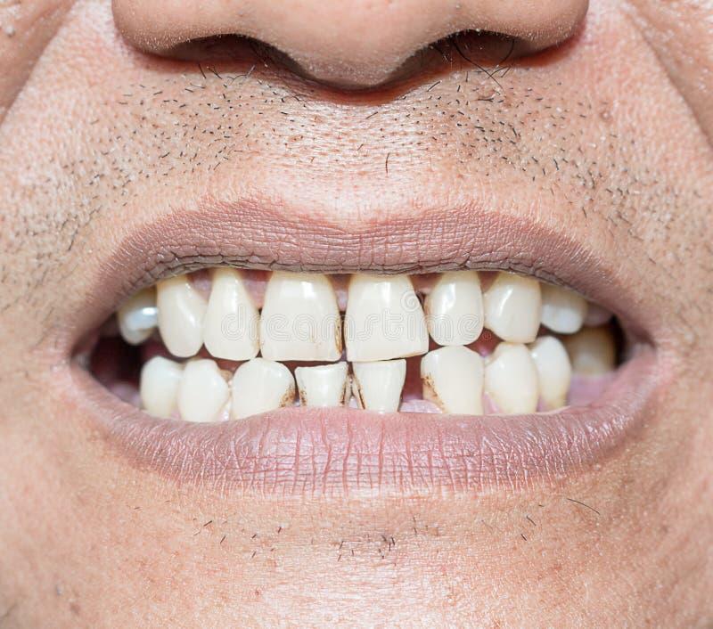 Курильщик больных зубов стоковые изображения rf