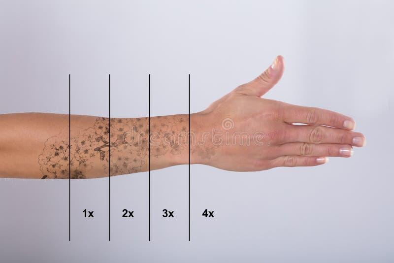 Лазер татуирует удаление на руке ` s женщины стоковые изображения rf