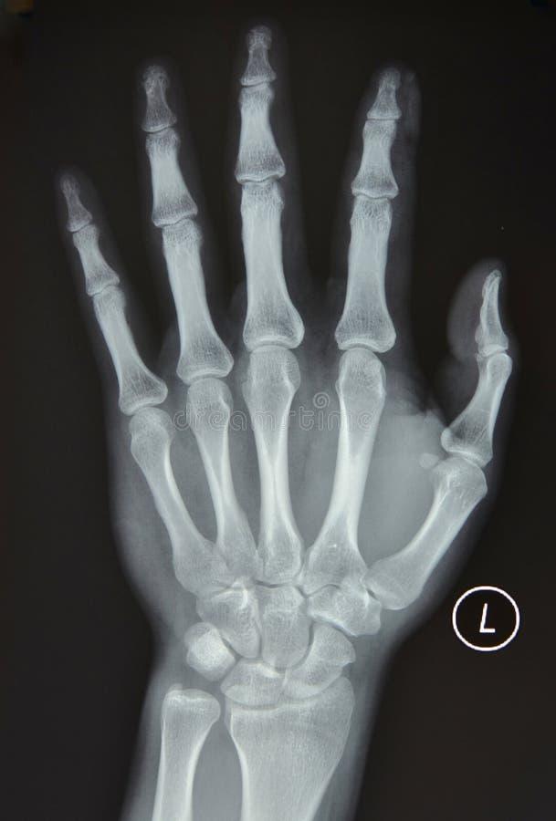 Левый рентгеновский снимок руки стоковая фотография