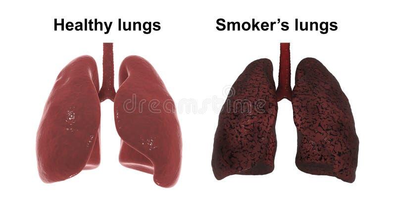 Легкие здоровых и курильщика ` s изолированные на белой предпосылке, медицинская концепция, иллюстрация штока