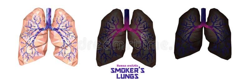 Легкие ` s курильщика установили в низкое поли Здоровые легкие, больные легкие, cance иллюстрация штока