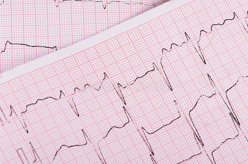 Лента с cardiogram человека стоковая фотография rf
