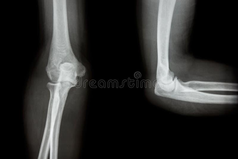 Локоть AP рентгеновского снимка фильма (переднезаднее) /lateral стоковое фото rf