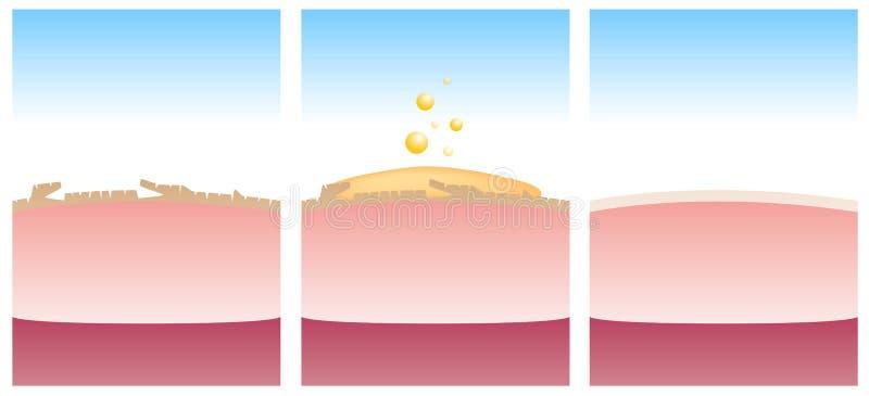 Лосьон которое уничтожает мертвую, плохую кожу и делает кожу ровный иллюстрация вектора