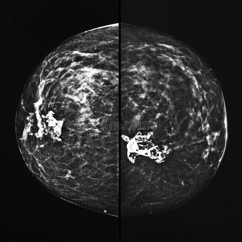 Луч маммографии x стоковая фотография rf