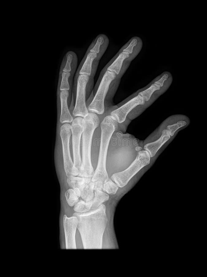 луч руки людской x стоковая фотография rf