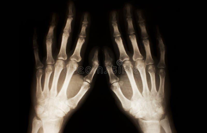 луч рук x стоковое изображение