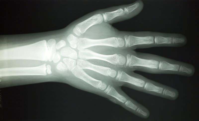 луч частей тела x стоковое изображение