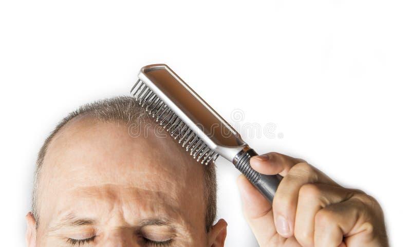 Лысый человек с гребнем Концепция выпадения волос стоковые фото