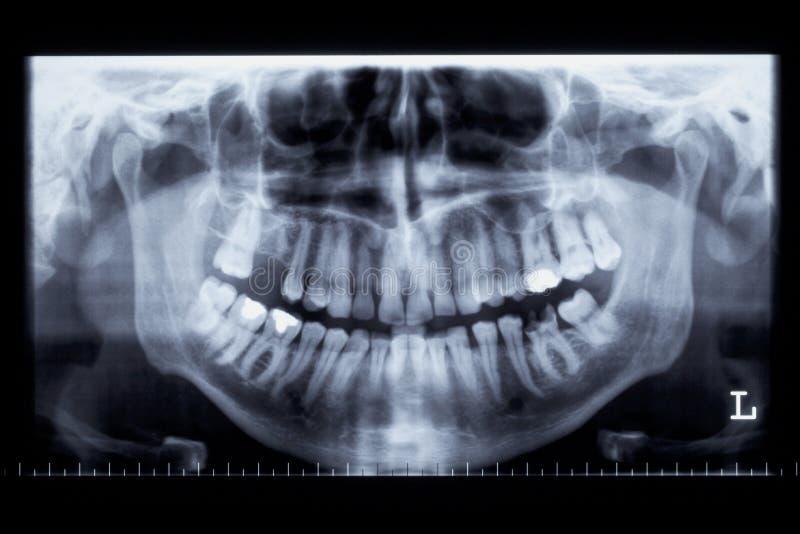 людской луч панорамы челюсти изображения x стоковое изображение rf