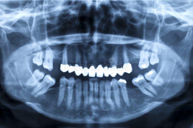 людской луч панорамы челюсти изображения x стоковые фото