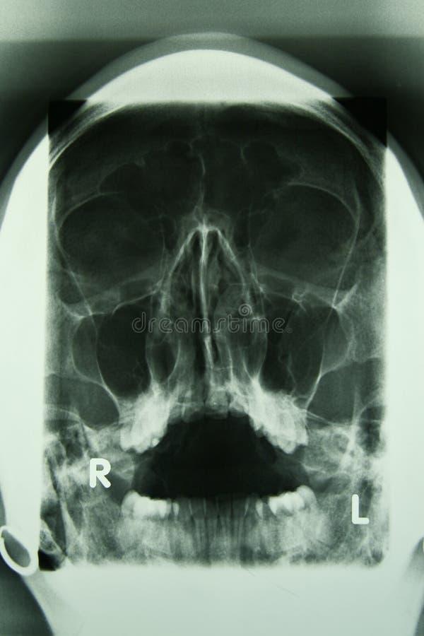 людской череп x луча фото стоковая фотография rf