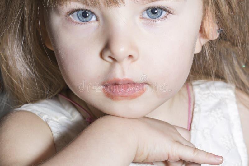 Маленькая девочка Portait с аллергиями, шелушением кожи и зудеть, губа лижа дерматит стоковое изображение rf