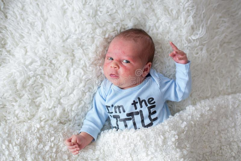 Маленький newborn младенец спать, младенец с сыпью на коже стоковое фото