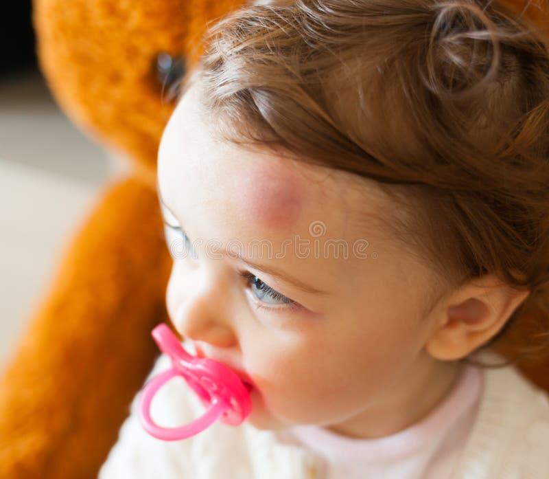 Малыш с большим синяком на его лбе после bumping стоковое фото