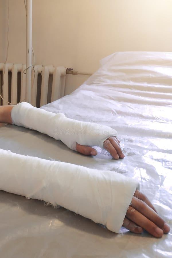 Мальчик после закрытой трещиноватости причалил больнице для медицинской помощи в форме верхнего слоя повязки гипсолита стоковое изображение