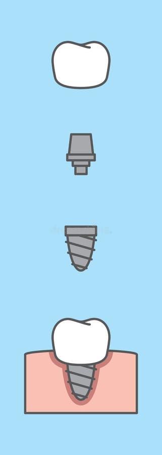 Материальный шаг вектора иллюстрации зуба implant на сини иллюстрация штока