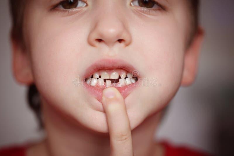 Мальчик портрета крупного плана маленький счастливый гордый для того чтобы освободить его зуб молока стоковая фотография rf