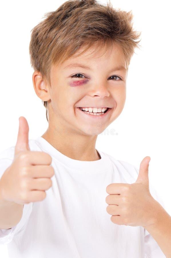 Мальчик с синяком стоковые изображения