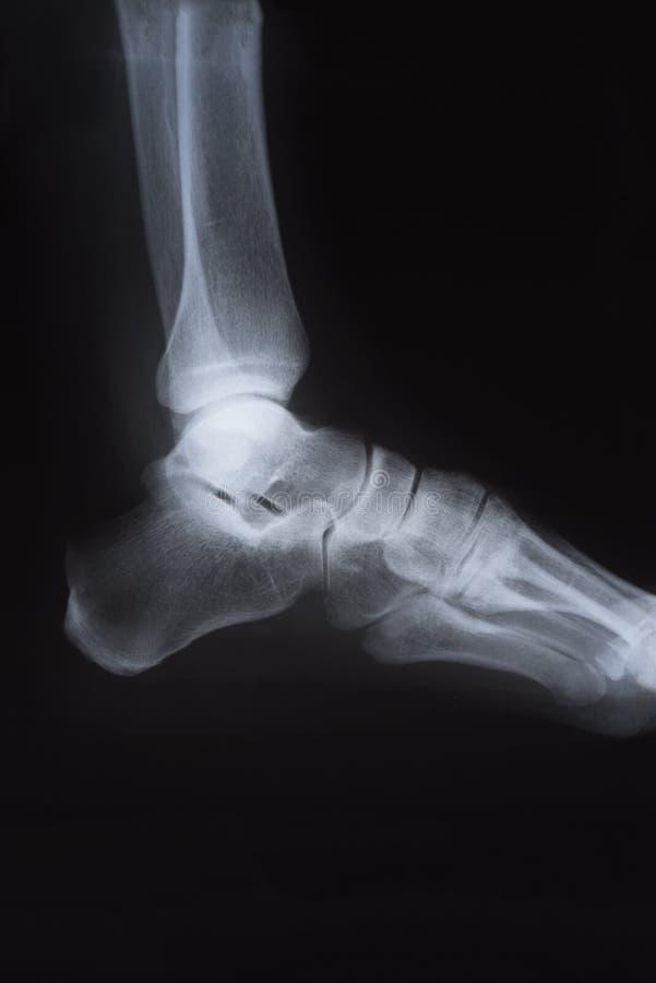 Медицинское изображение луча x ноги стоковое изображение rf