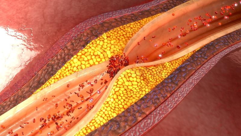 Металлическая пластинка коронарной артерии стоковые изображения