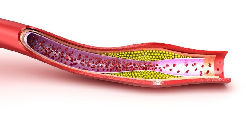 Металлическая пластинка холестерола в кровеносном сосуде иллюстрация штока