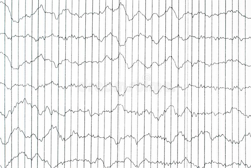 Метод контроля EEG электрофизиологический Волна EEG в человеческом br стоковые фото