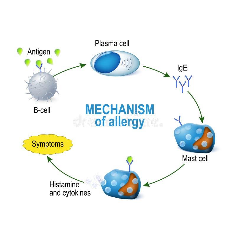Механизм аллергии Клетки рангоута и аллергическая реакция иллюстрация вектора