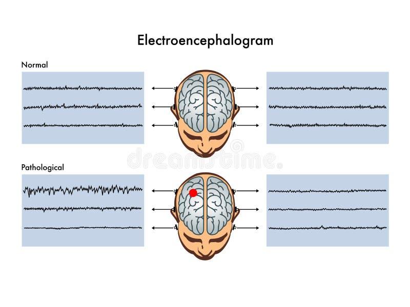 Электроэнцефалограмма иллюстрация вектора