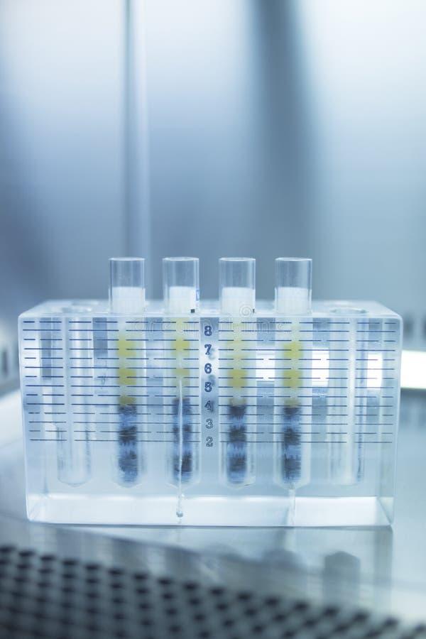 Медицинская плазма богачей бляшки трубок лабораторного исследования PRP стоковая фотография rf