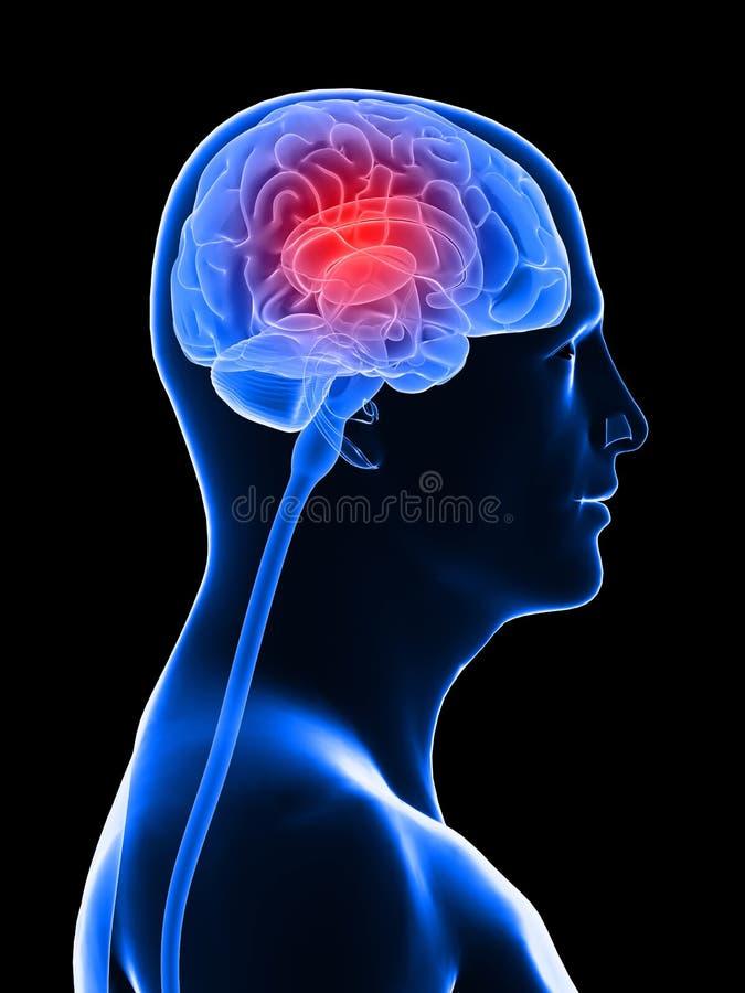 мигрень головной боли иллюстрация вектора