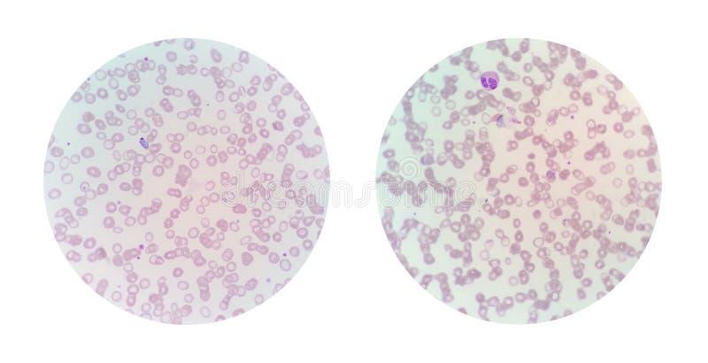 Микроскопические взгляды тонкого мазка крови от малярии заразили PA стоковое фото rf