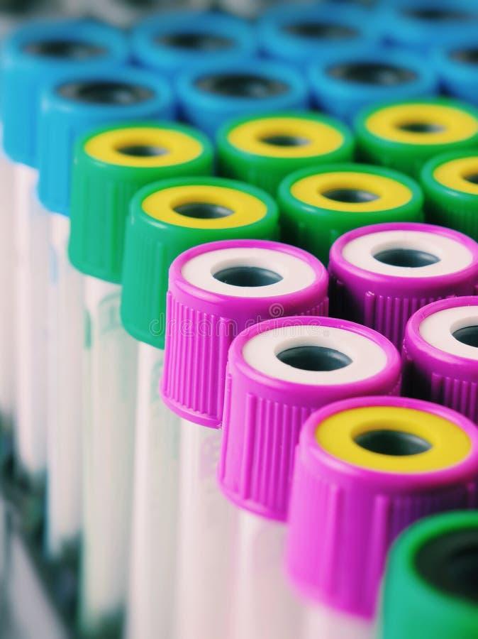 Много пробирок с multicolor крышками на шкафе пробирки Фото макроса с пробиркой для крови стоковые фотографии rf