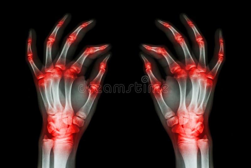 Множественный совместный артрит обе руки взрослого (подагра, ревматоидные) на черной предпосылке стоковые изображения