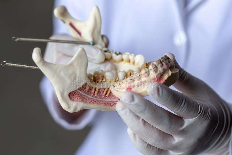 Модель зуба для образования в лаборатории стоковая фотография rf