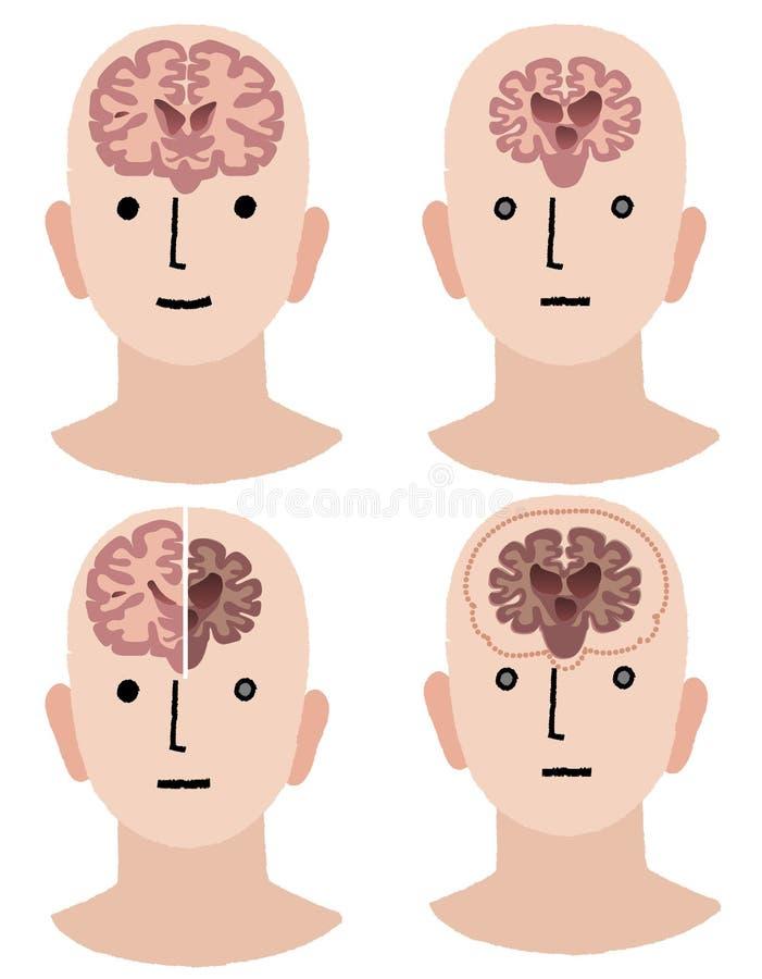 Мозги слабоумия и здорового человека бесплатная иллюстрация
