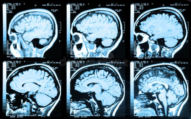 мозг стоковое изображение rf
