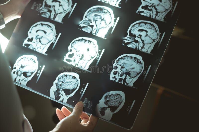 Мозг MRI и слабоумие стоковое изображение rf