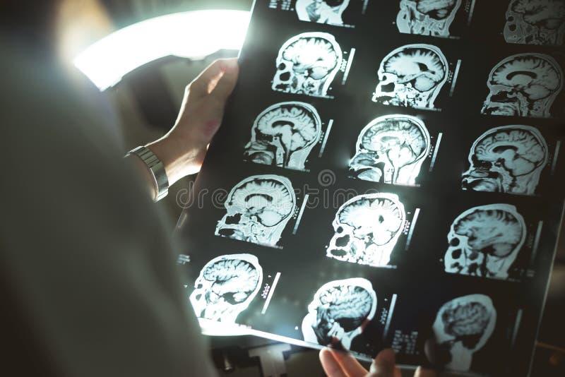 Мозг MRI и слабоумие стоковая фотография rf